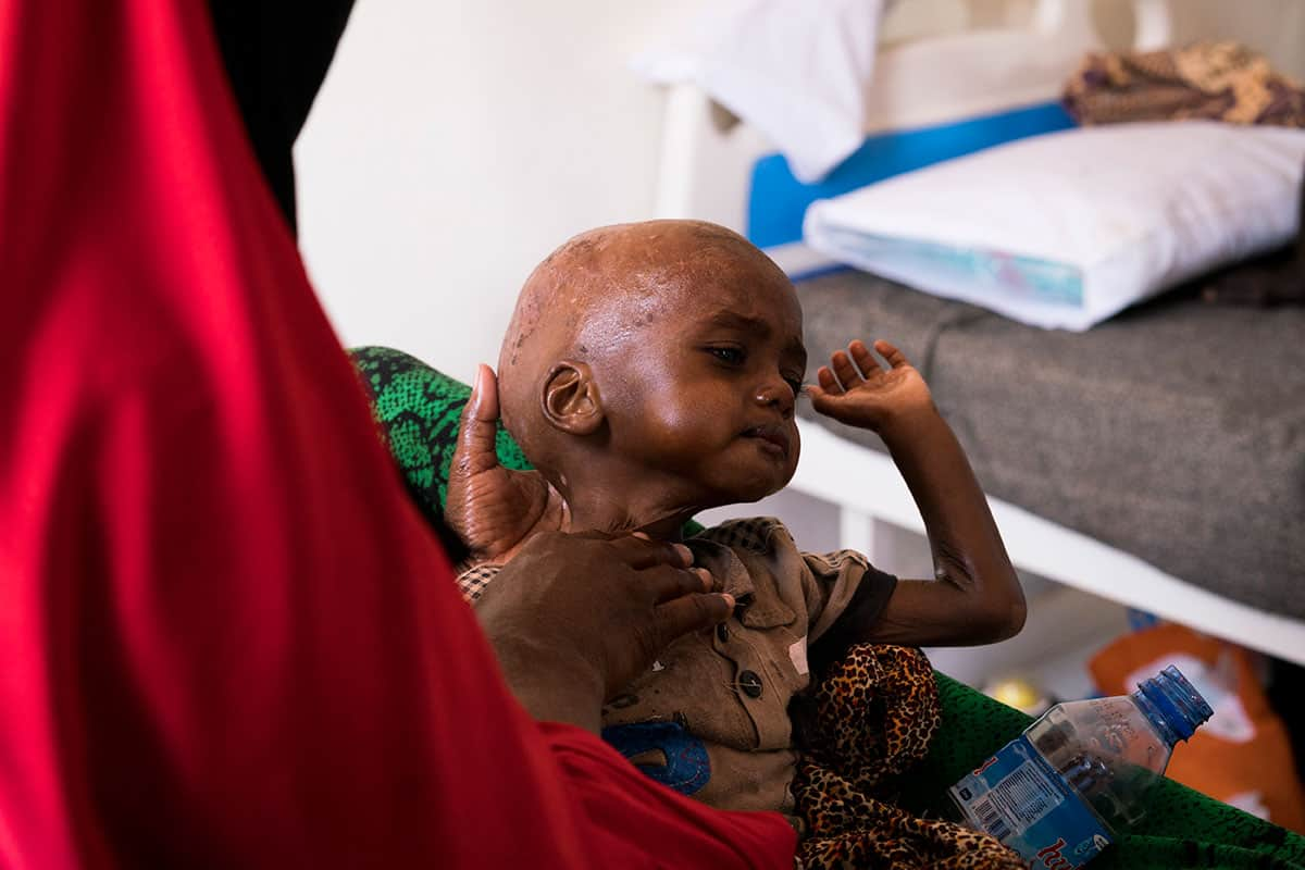 Isse Muhammad, 1 year old is being treated for malnutrition [Source: Al-Jazeera]
